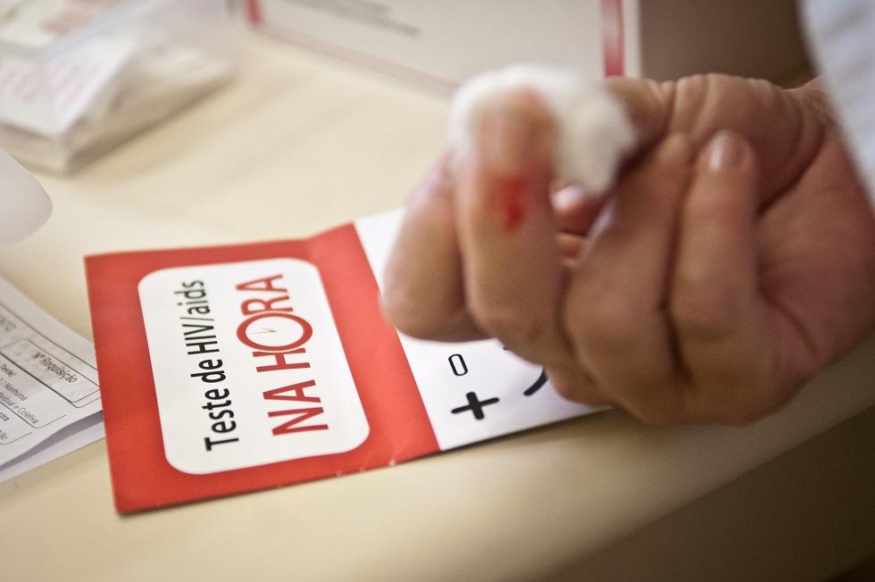 Pesquisa brasileira aponta cura da Aids