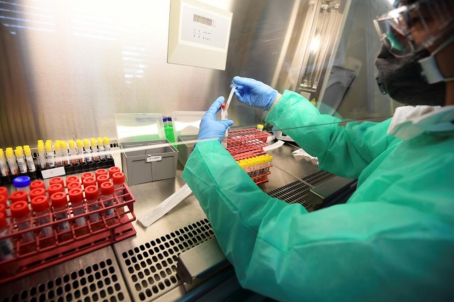 Contaminados por covid-19 já são mais de 3 milhões no mundo